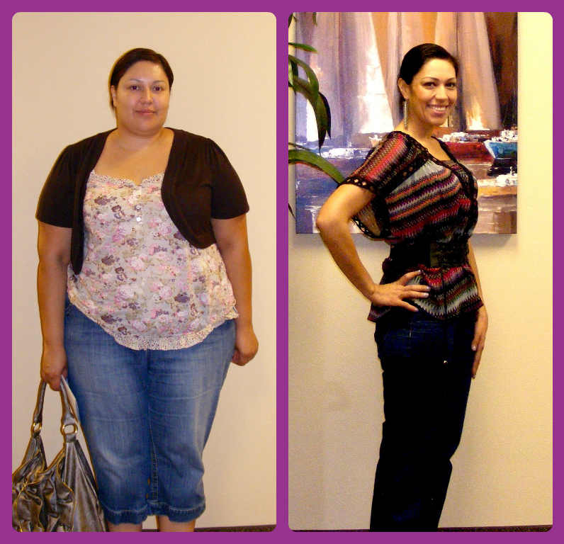 Before and After Weight Loss Surgery